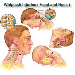 Whiplash injuries to the head and neck